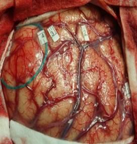 Exemple tumeur cérébrale